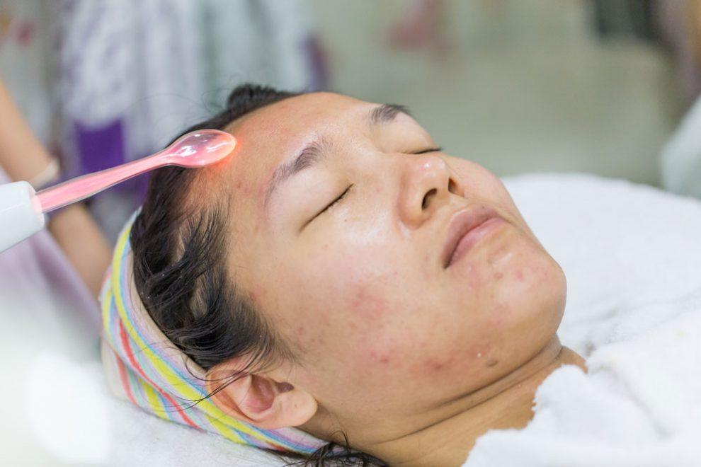 Aknenarben lasern lassen