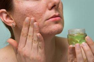Hausmittel gegen Aknenarben