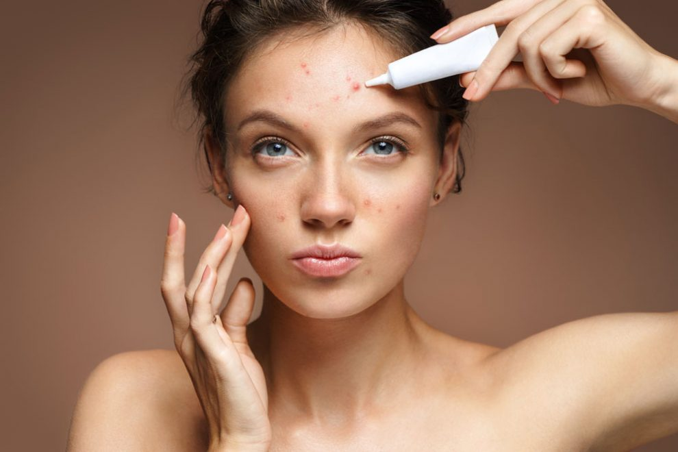 Unreine Haut Mit 30 10 Tipps Für Erwachsene Rundumgesundde