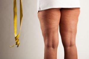 Oberschenkel straffen - 10 Übungen gegen Reiterhosen