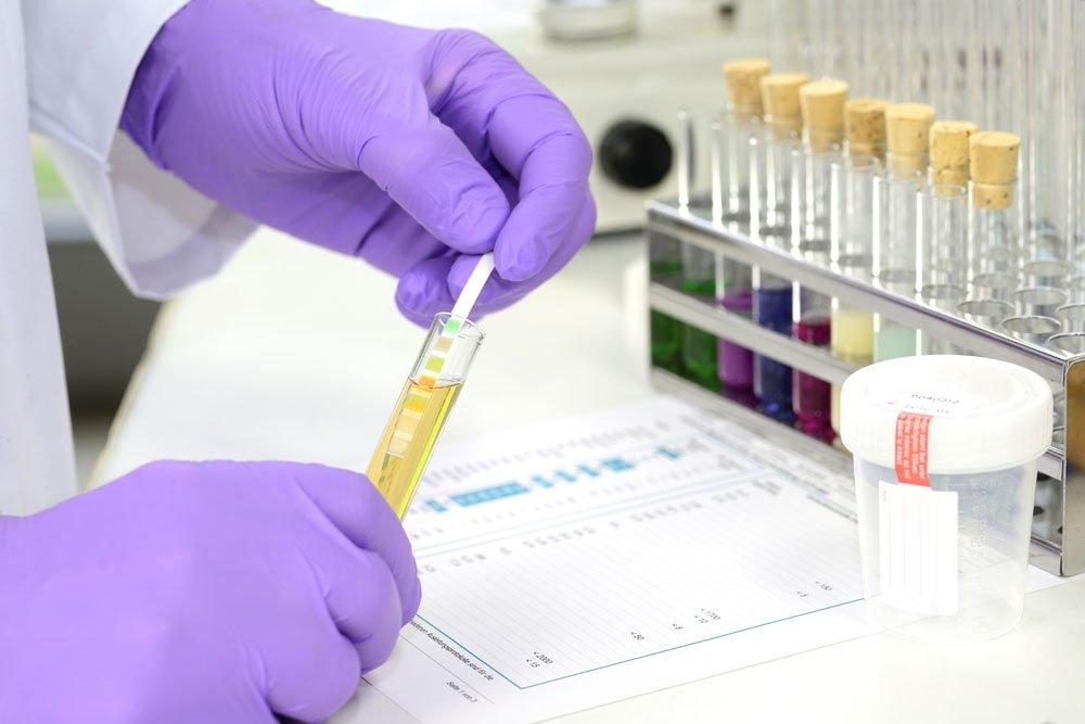Blasenentzündung - Urinprobe
