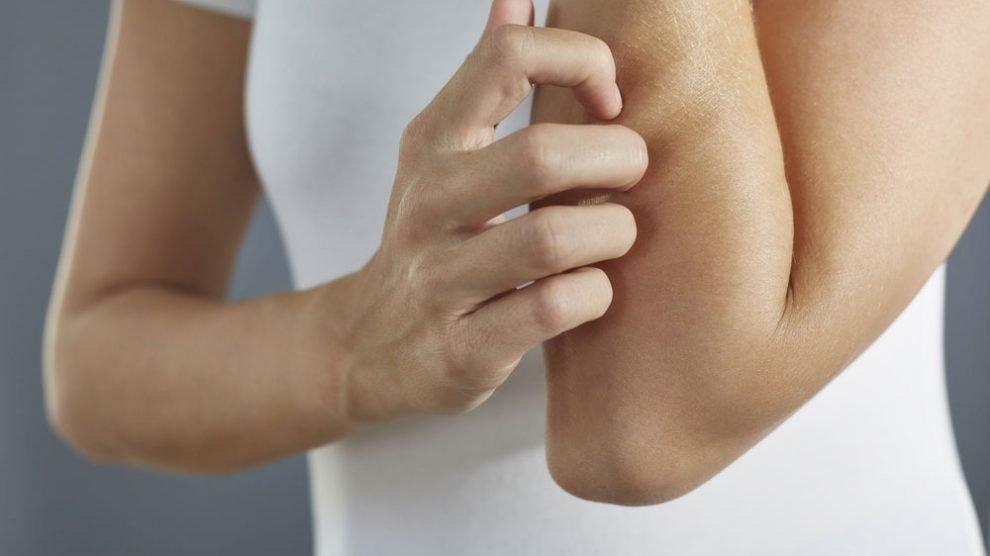 Body Lotion bei empfindlicher Haut