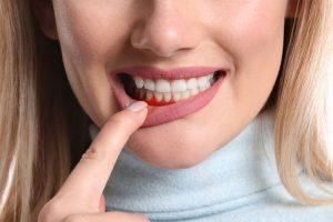 Hausmittel gegen Zahnfleischentzündungen