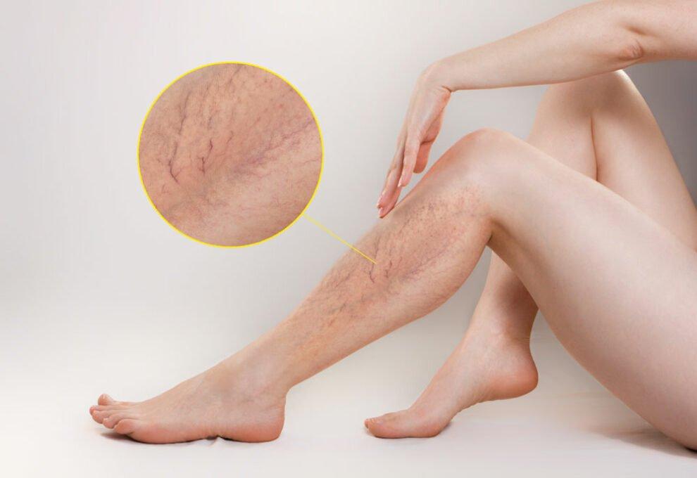 gefäßerkrankung krampfadern behandlung