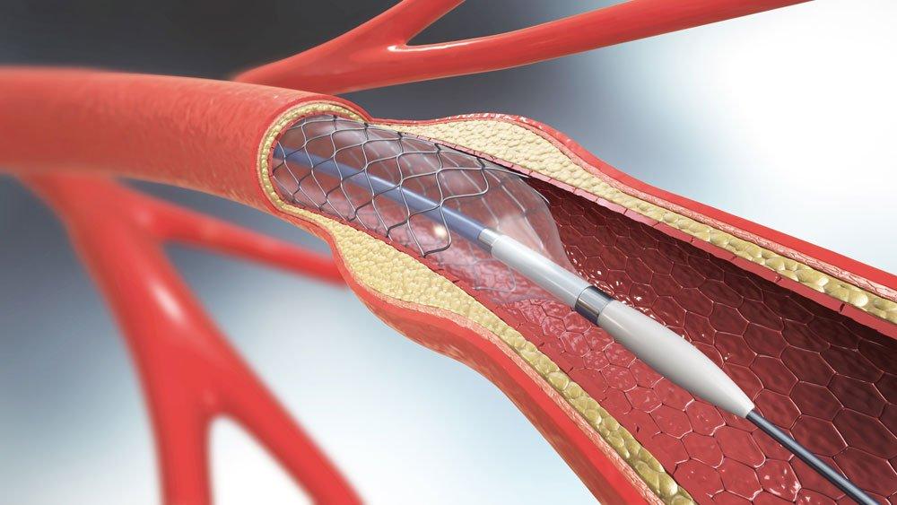 gefäßchirurgie stents therapie